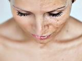3 metode naturale care te scapă de petele de pe faţă