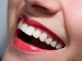 Alimente care îți albesc dinții