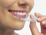 Ce poţi păţi dacă ai dinţii strâmbi