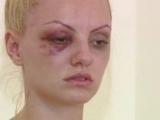 Imagini terifiante! Alexandra Stan, bătută cu bestialitate de propriul manager